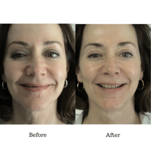 amazing skin care treatment before and after