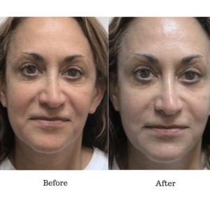 after before oxygen treatment skin