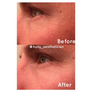 before after eye rejuvenator