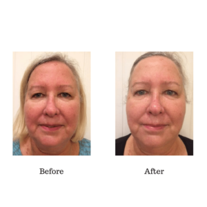 Before and After Rezenerate Skin Treatment
