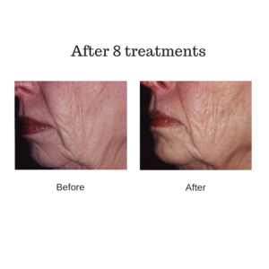esthetic equipment illuminate LED full face panel before and after