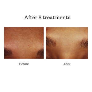 estheticians LED light therapy before and after