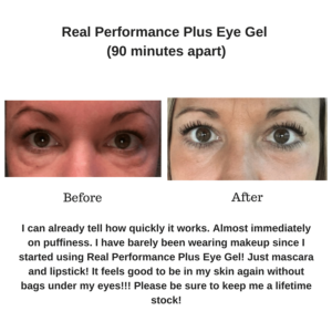 eye gel skincare estheticians